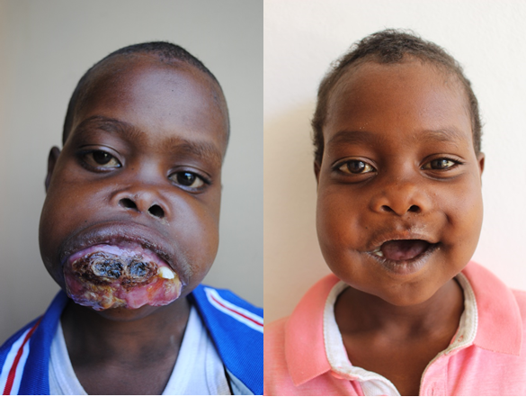 cleft, facial disfigurement, ethiopia, charity, fundraising, eastafria, africa, volunteers, cleft palate, Project Harar